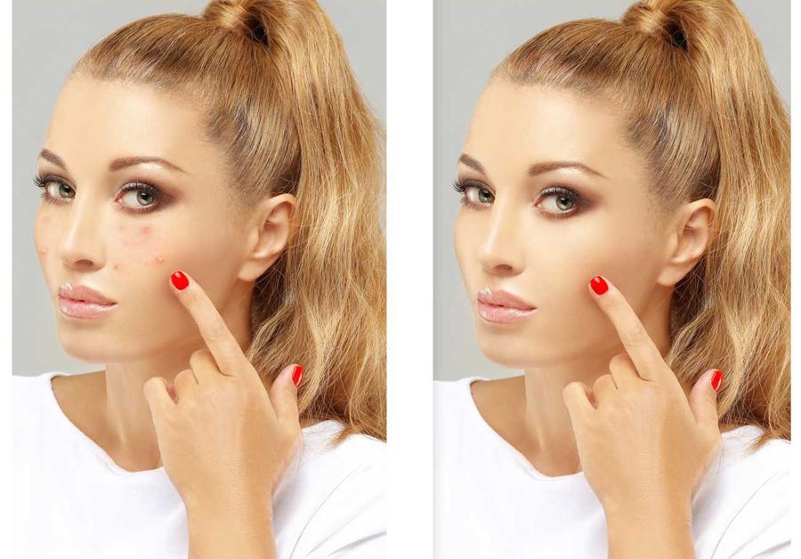 Eliminare acnee ten curat